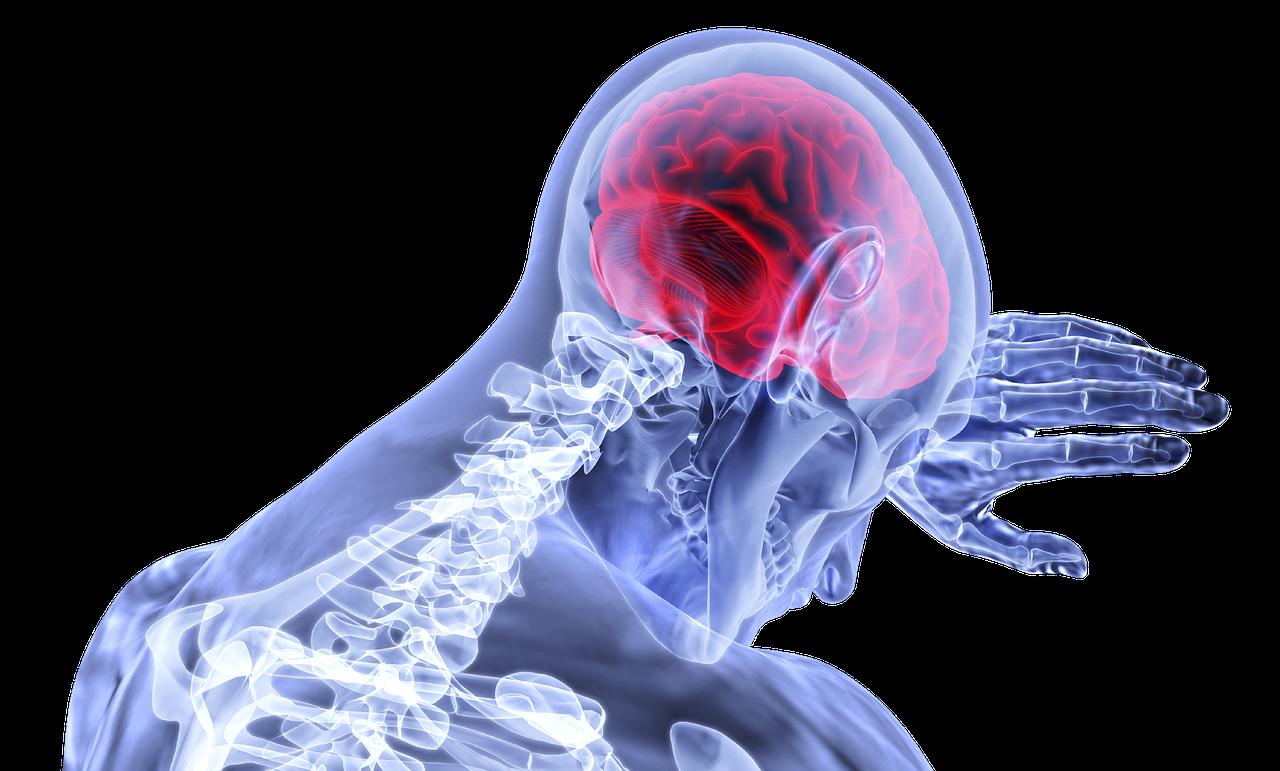 Stimuler le nerf vague pour guérir les migraines